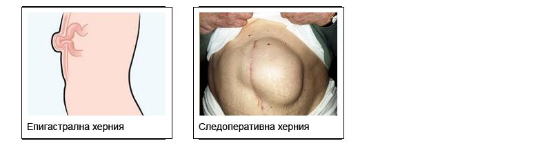 Възстановяване след операция на коремна херния