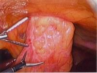 Лапароскопия при херния
